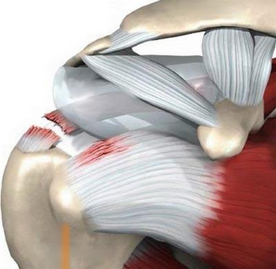 Ola kaldkriipsud ja lihashaigused Eemaldage valu liigestes