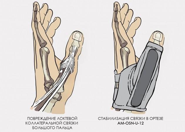 Sorme tuimus artriidi Chondroitiin Glukosamiin maitsetaimedesse