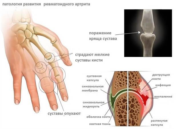 Sorme ravi artroos