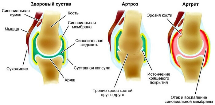 Parast liigeste peatamist Valu suurte liigeste pohjused ja ravi